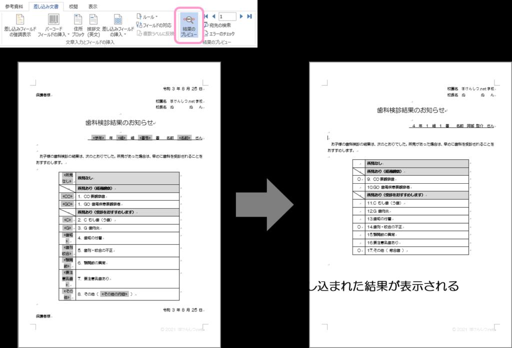 「結果のプレビュー」をクリックすると、データが差し込まれた結果がプレビュー表示されます。